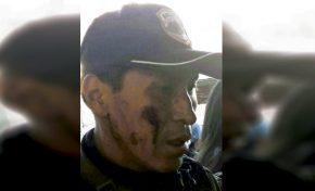 Policía denuncia que fue secuestrado y golpeado por chofer