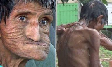 Muere anciana víctima de agresiones y encierro por parte de su hijo