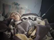 Aidé necesita ayuda para ser operada de un tumor gigante