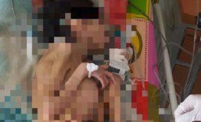 Niña de 14 años con 7 kilos de peso y discapacidad es internada en Hospital de El Alto